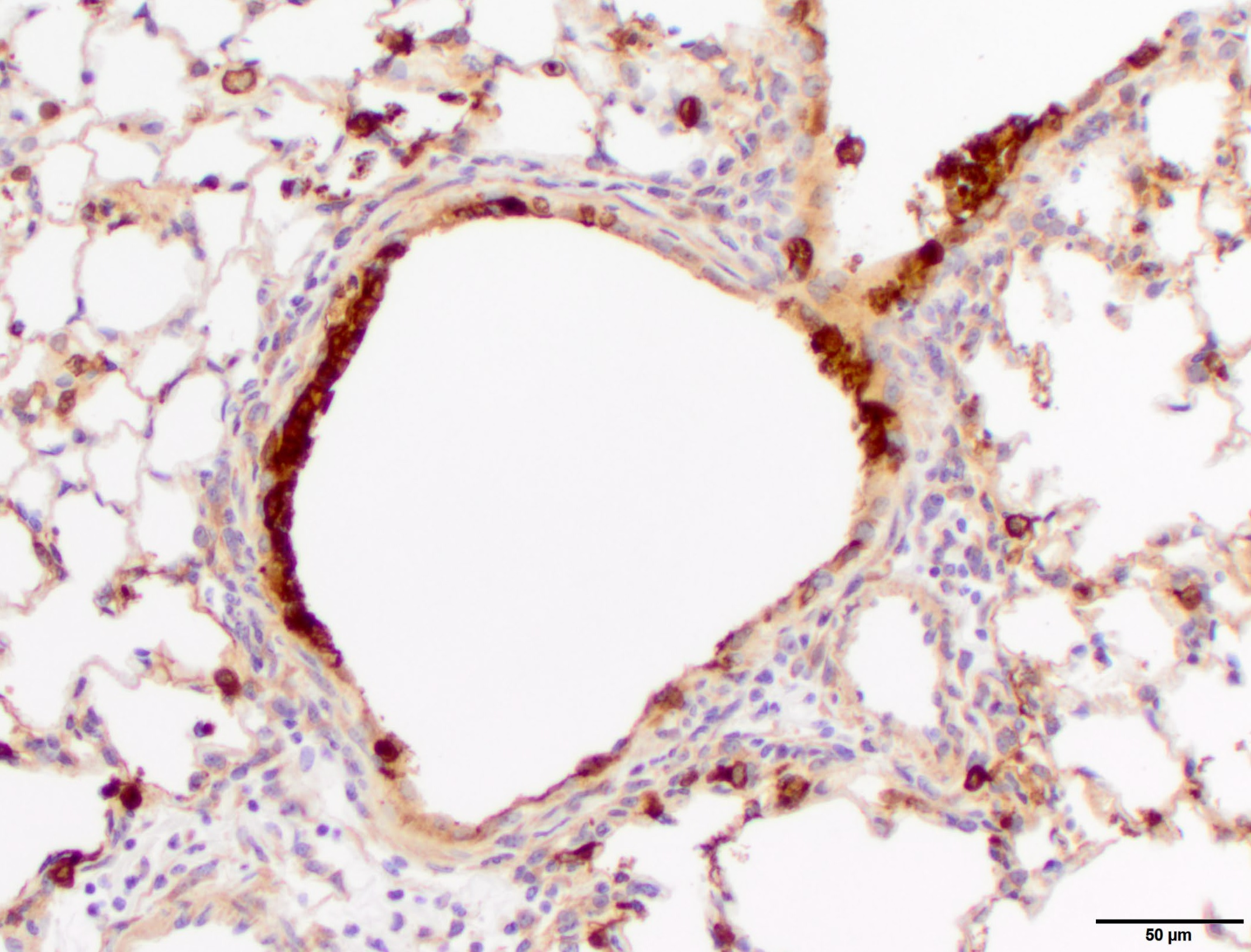 Flu in mouse lung
